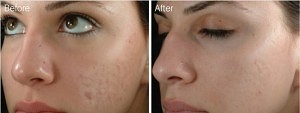 Acne improvement after dermarolling therapy, before and after pictures