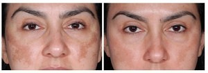 Before and after picture Hyperpigmentation Dermaroller Treatment