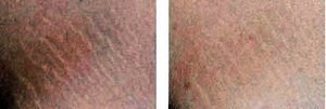 Stretch marks treatment with dermaroller, before and after photos