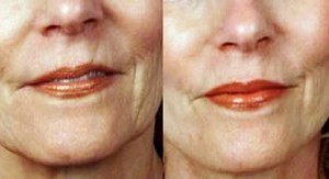 Antiaging-Wrinkle rejuvenation with derma roller, before and after images