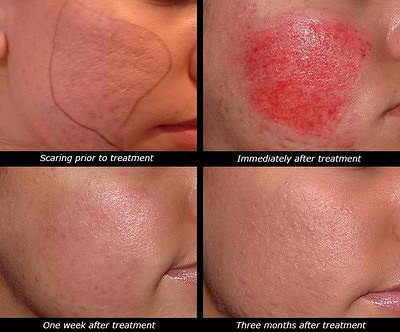 Derma roller Side Effects