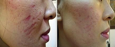 scarring results with derma roller