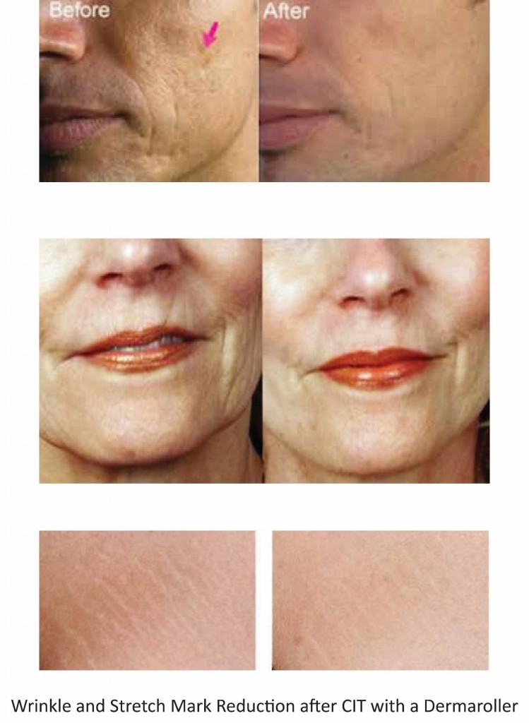 Before And After Diy Kitchen Renovation: Collagen Induction Therapy Or Micro-Needling